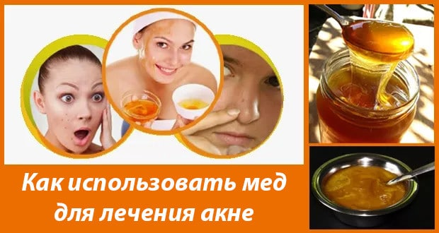 Лечение акне в домашних условиях медом