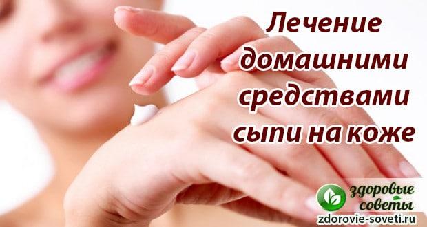 лечение сыпи на коже домашними средствами