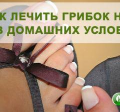 Грибок ногтей на ногах: причины и лечение в домашних условиях