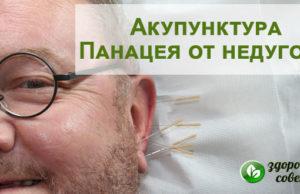 Иглоукалывание, польза и вред